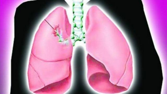 prognoza cancerului pulmonar cu celule mici