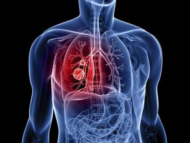 cancerul celulelor plămânului scuamos