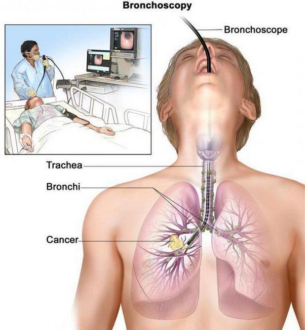tratamentul cancerului pulmonar cu celule scuamoase