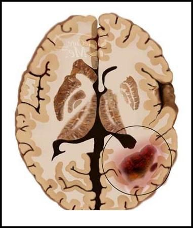 Cancerul de creier
