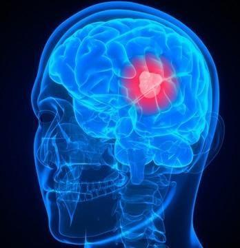 Cancerul de creier (cauze)
