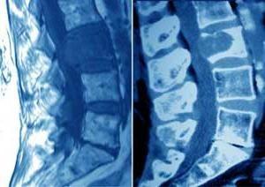 Cancerul maduvei spinarii (simptome)