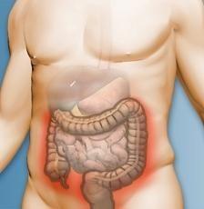 simptome de cancer colorectal