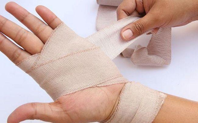 întinderea simptomelor periilor ligamentelor
