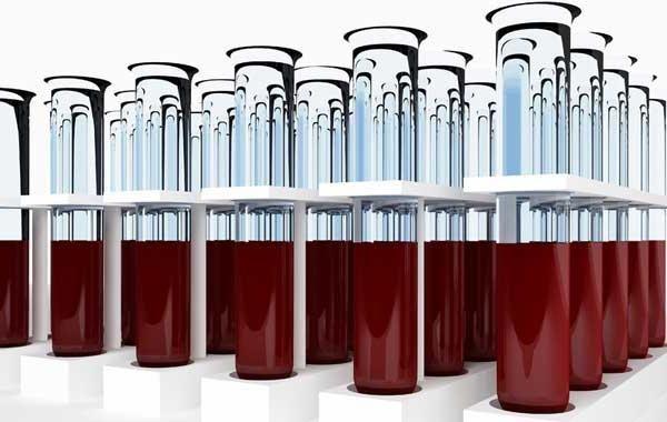 interpretarea rezultatelor testelor de sânge