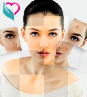 Tratamentul acneei și acneei