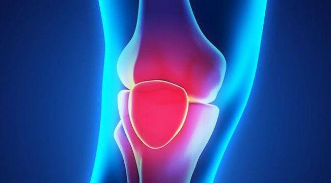болезни коленей