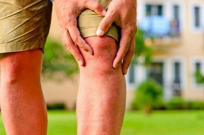 болезнь колена артроз