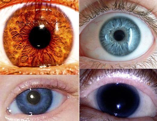 Cel mai rau ochi de culoare