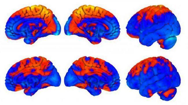 semnul caracteristic al compresiei cerebrale