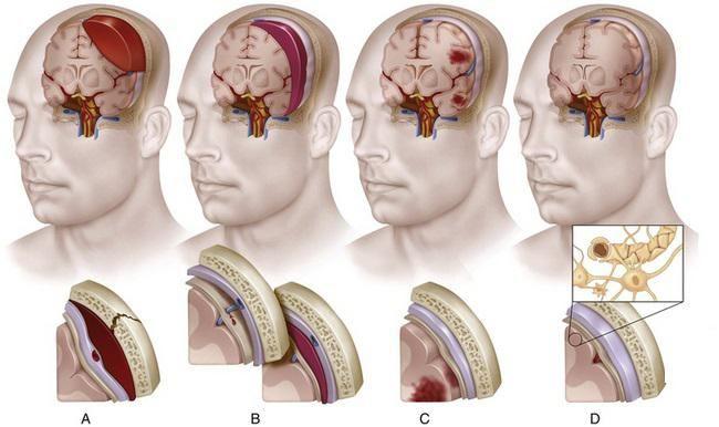 contuzie și compresie a creierului
