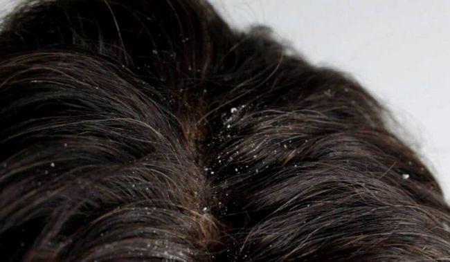 seborea uleioasă a scalpului