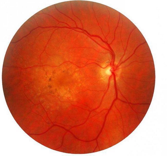 сетчатка глаза строение и функции