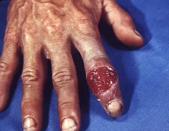 simptome de sifilis