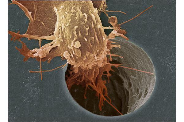 Simptome de cancer pe oase