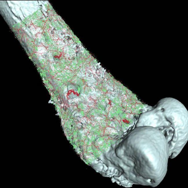 simptome ale cancerului osului piciorului