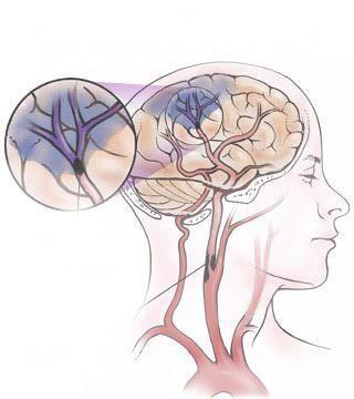 Accident vascular cerebral ischemic