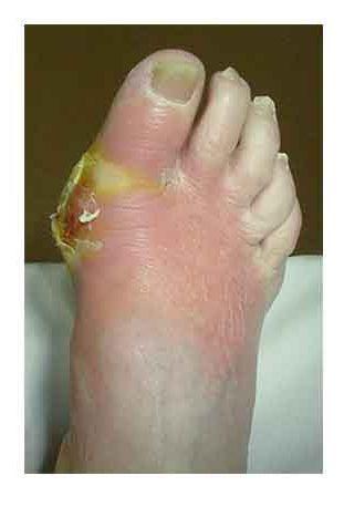 simptome de osteomielită