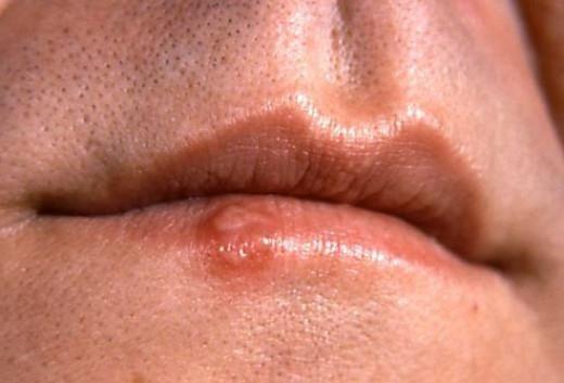 Simptomele cancerului de buze