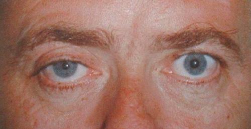 Sindromul Argyll robertson