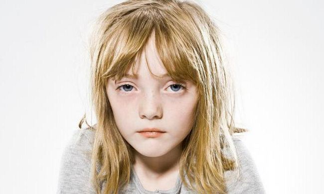 Sindromul Kartagener la copii