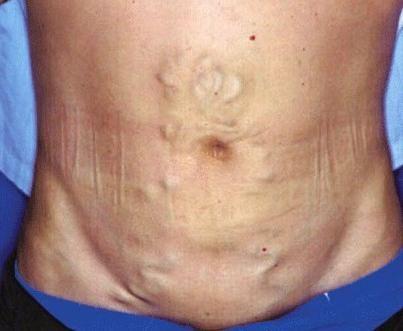 sindromul hipertensiunii portale