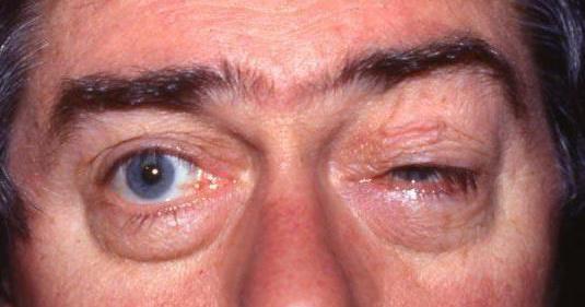 sindromul de fisură glandulară superioară