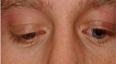 simptomele sindromului de glottis