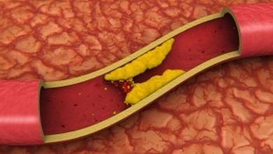 Scleroza aortică și consecințele acesteia