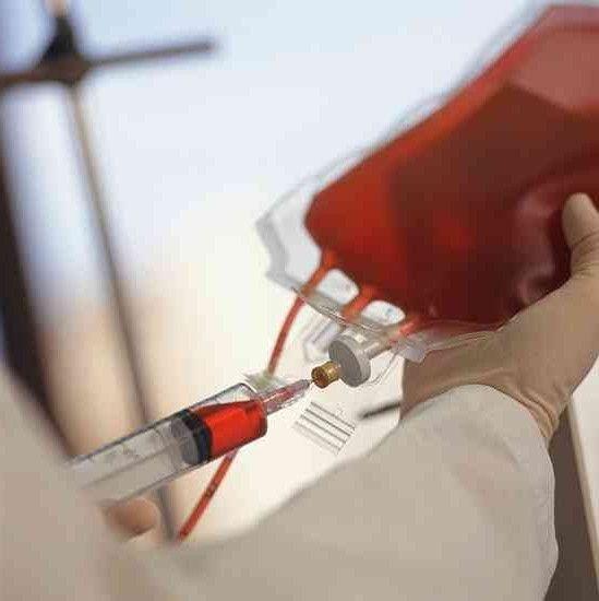 proprietăți ale plasmei sanguine