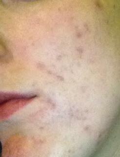 Cum sa scapi de pete rosii din acnee