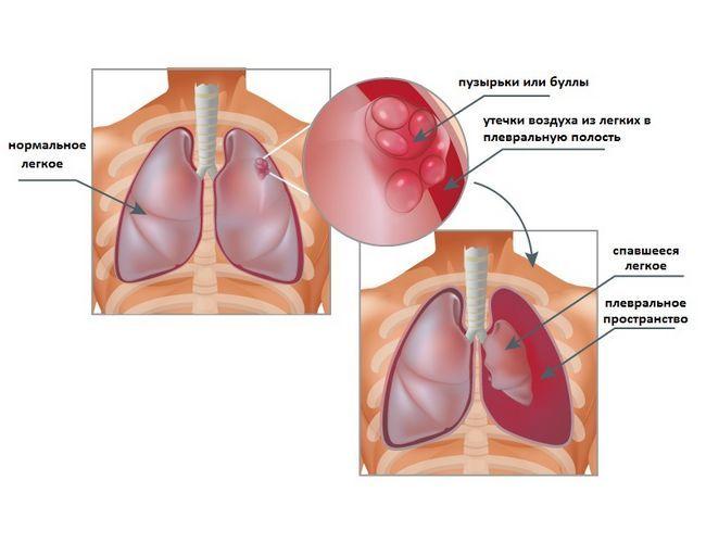 spontan pneumotorax