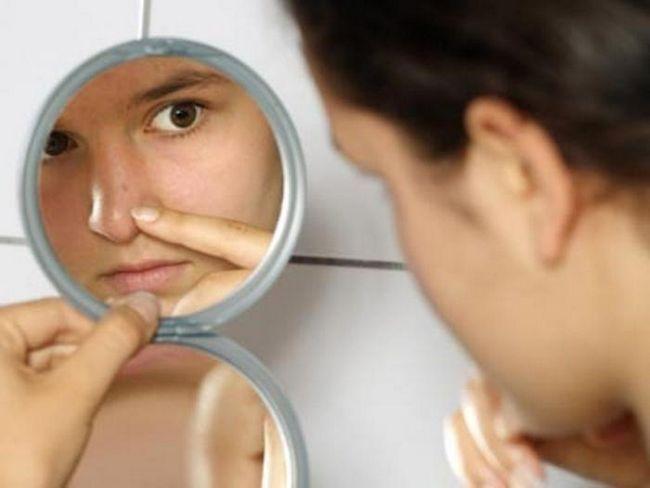 Means Skinoren (gel) în lupta împotriva acneei