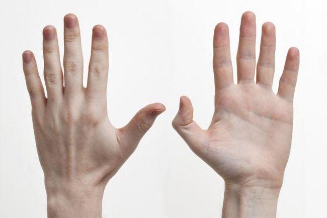 tendonul de încheietura mâinii