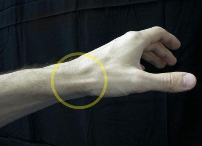 mâncărime tendon mână