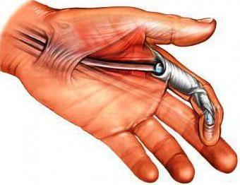 o operație pe o mână de sine