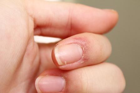 Pielea de pe degete de lângă unghii