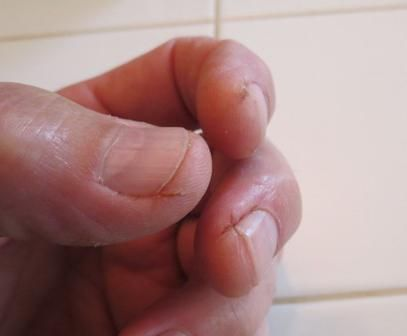Rupe pielea de pe degete cauza