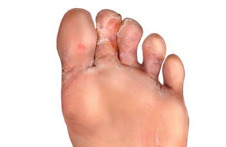 Cracked piele pe degetele de la picioare