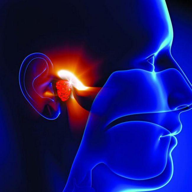 simptomele pierderii auzului