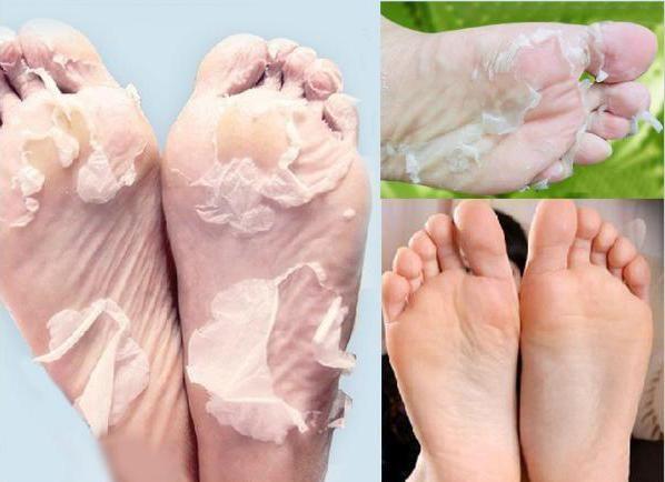 pielea dintre degete