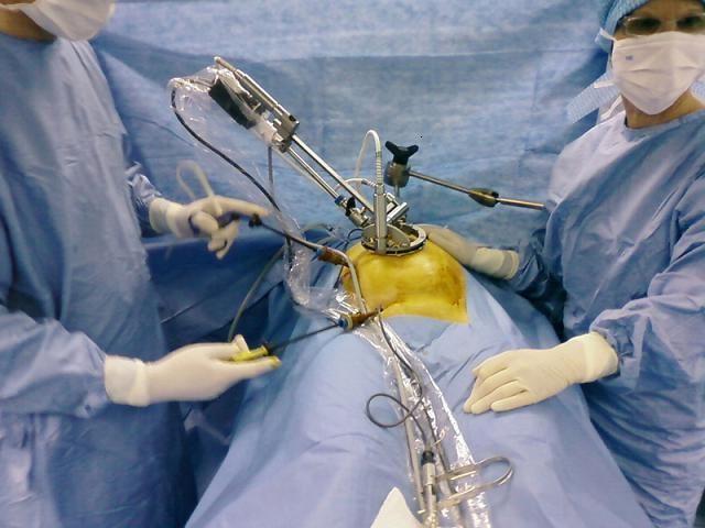 laparoscopic îndepărtarea chistului ovarian