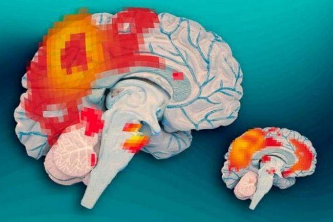 cât de mult cântărește creierul uman în medie