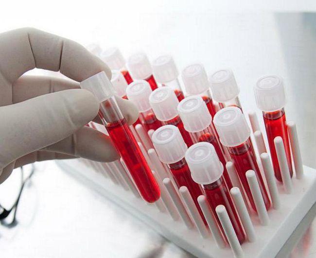 compoziția hemoglobinei este