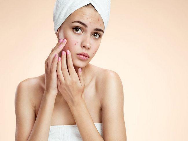 tratamentul și prevenirea acneei