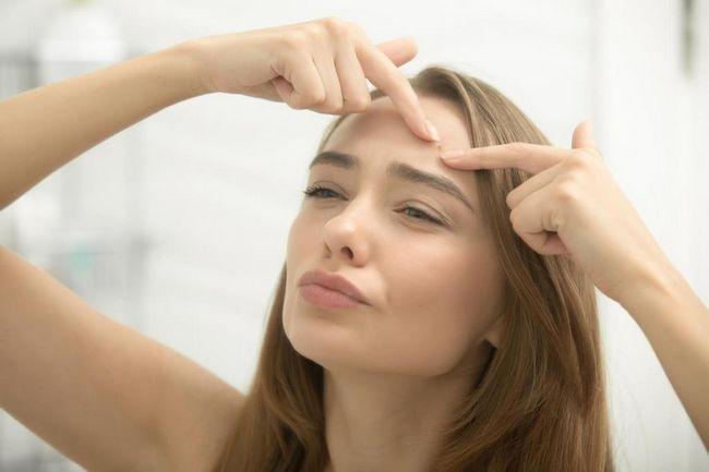 cum să scapi de acnee