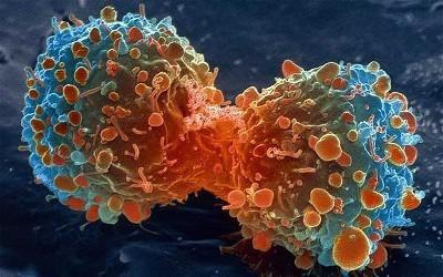 tipuri de cancer