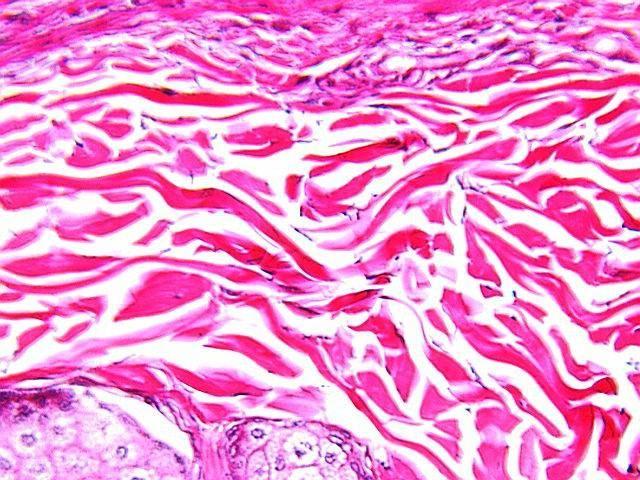 Țesutul conjunctiv fibros