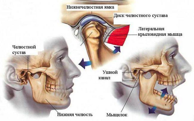 Inflamația articulației temporale a maxilarului
