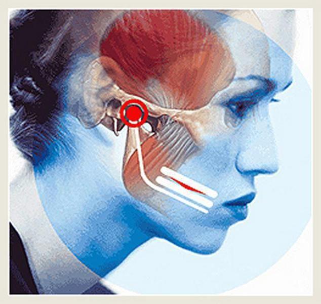inflamarea articulației maxilare